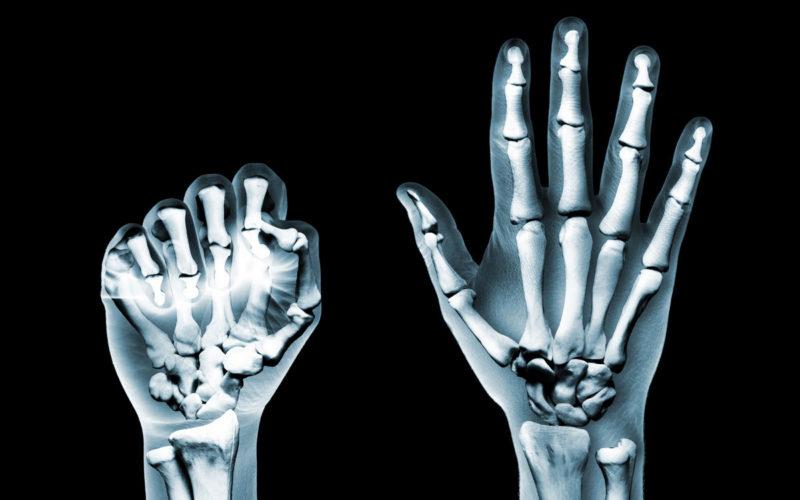 Täglich Rheumabeschwerden in den Fingergelenken