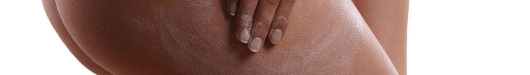 Mit der Kraft der Aloe Vera bestmöglich gegen Cellulite vorbeugen und wirken