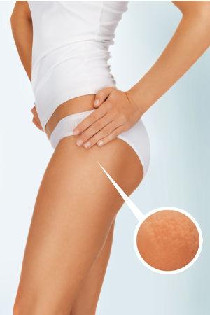 Unterstützung bei Cellulite (Orangenhaut)